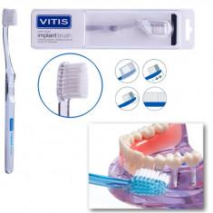 Dentaid Зубная щетка VITIS Implant Brush